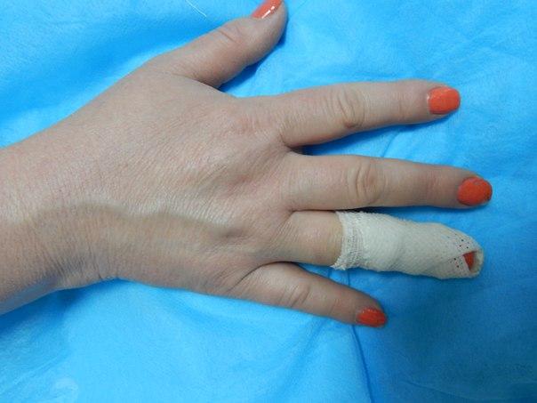 Головокружение при переломе пальца
