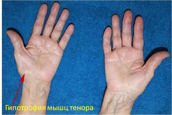 Синдром карпального (запястного) канала