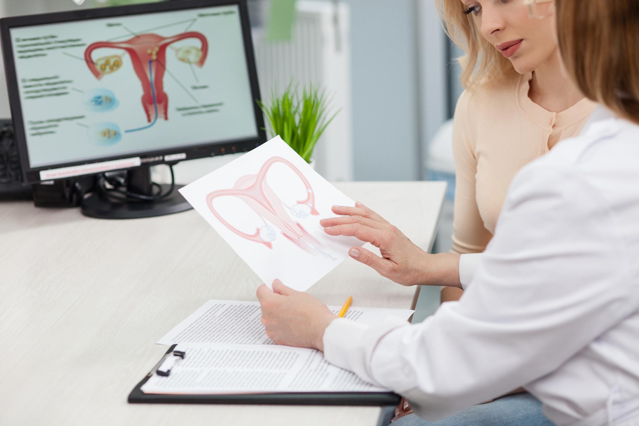 20170214-cervical-cancer