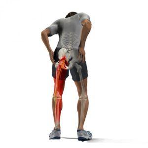 Синдром грушевидной мышцы: такая древняя и новейшая история