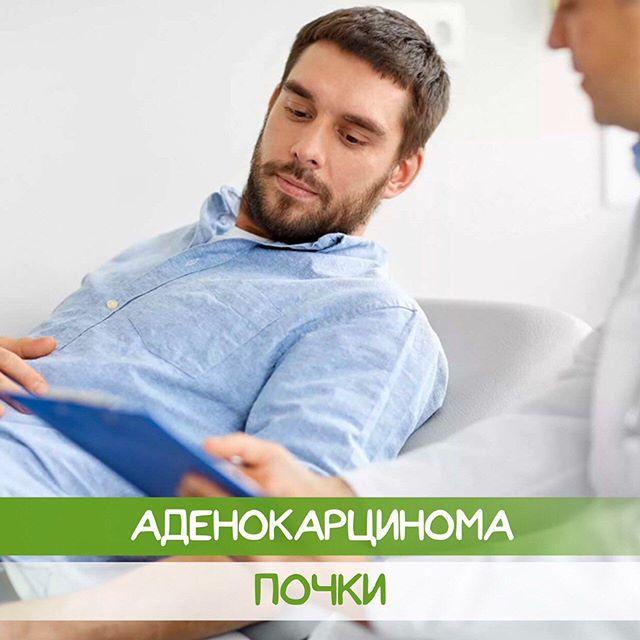 Аденокарцинома почки